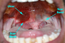 Submucous Fibrosis of the Oral Cavity
