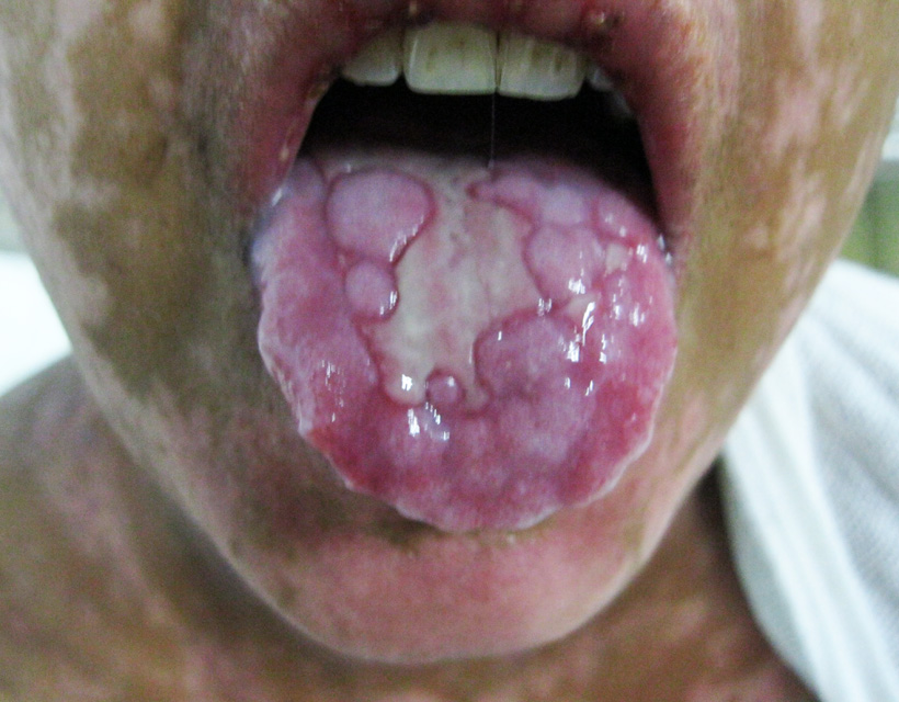 Stevens Johnson Syndrome