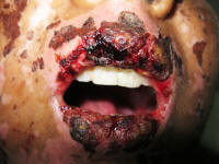 Before the treatment, hemorrhagic erosion and crusting over lips