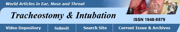 Timming of Tracheotomy in Intubated Patients