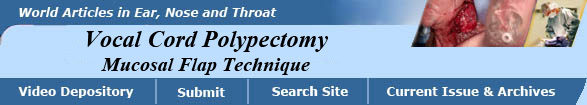 Vocal Cord Polypectomy, Mucosal Flap Technique, Kevin Kavanagh