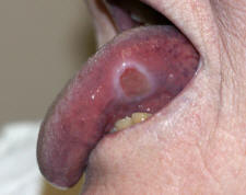 Apthosis Ulcer on the Lateral Tongue